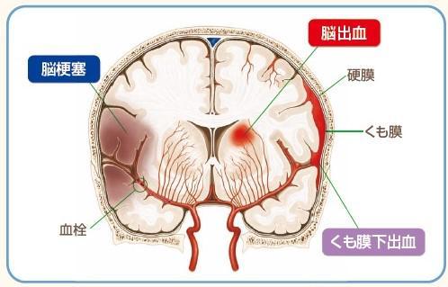 脳卒中の実態