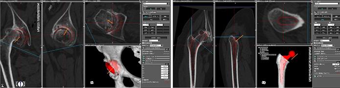 人工股関節の術前計画 左:臼蓋側カップ設置