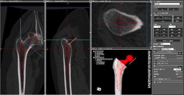 人工股関節の術前計画 大腿骨側ステム設置