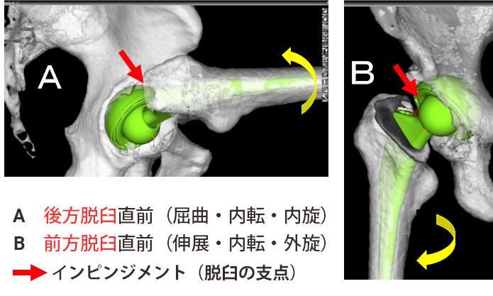 脱臼シミュレーション(左:後方脱臼, 右:前方脱臼)