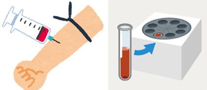 採血・治療