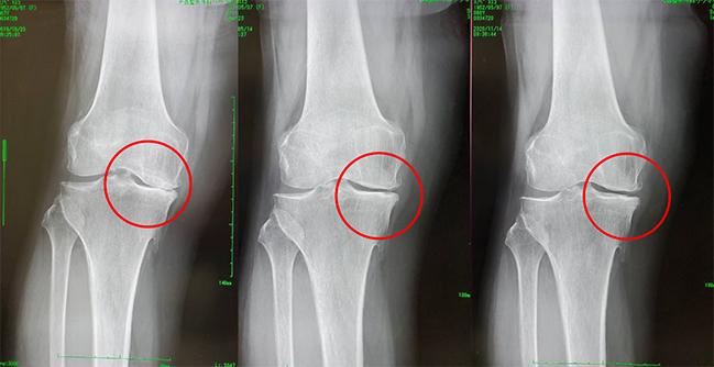 変形性膝関節症(内反型)68歳・女性