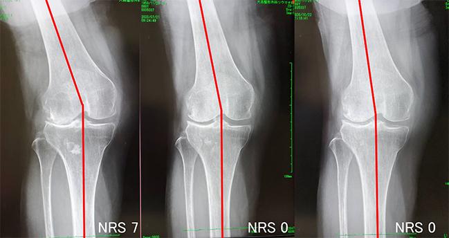変形性膝関節症(外反型)69歳・女性