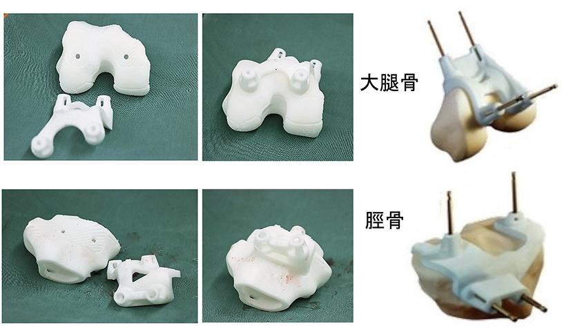 【画像】膝の実体模型と骨切りガイド (PSI)