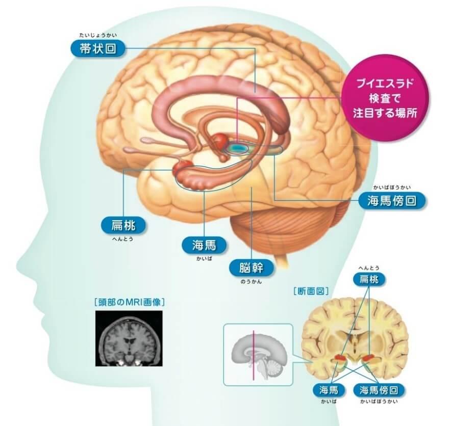 認知症の画像診断支援システムの説明図