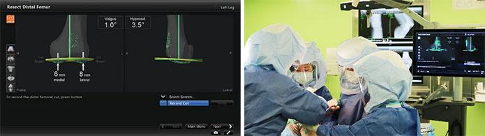 人工膝関節置換術(TKA)の術中ナビゲーション1