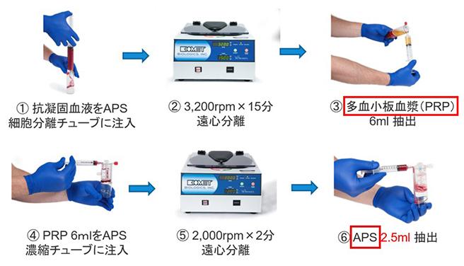 PRP (LR-PRP) と APS の抽出