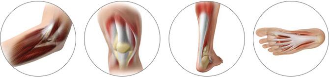 スポーツ障害などの筋・腱・靭帯損傷