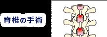 脊椎の手術